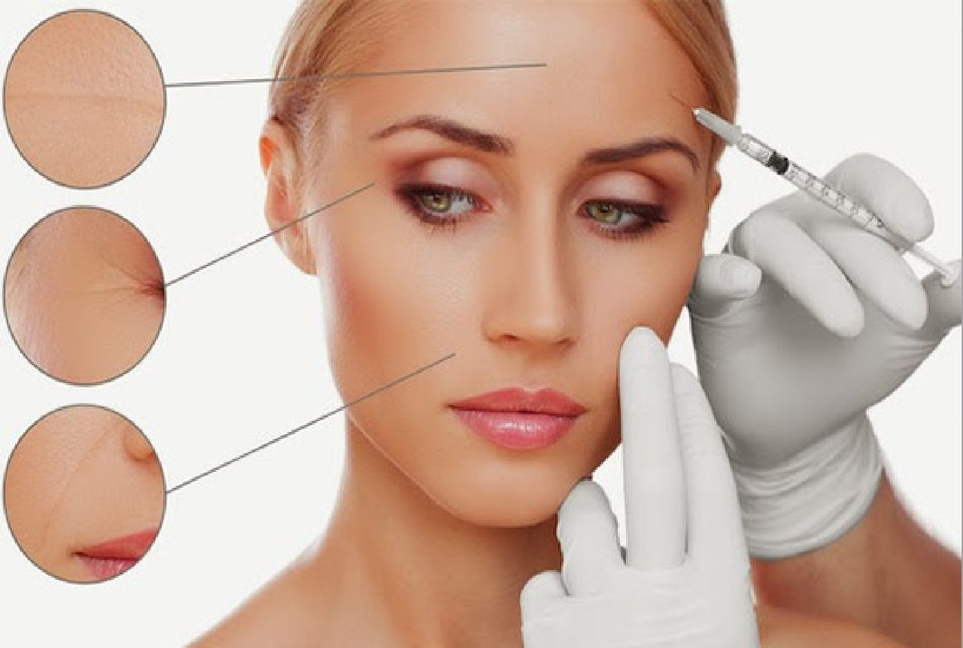 Mesotherapy On Face